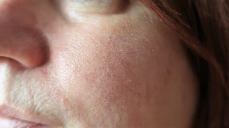 laser-treatment-rosacea